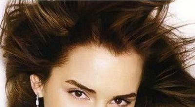 美人尖种植优势 广州瑞丽诗植发拯救尴尬发际线