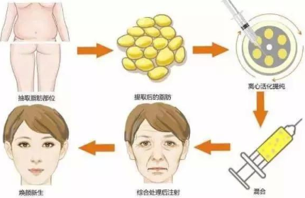 面部丰盈更减龄 北京艺美王东面部脂肪填充恢复时间长吗