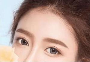 韩式双眼皮是怎么做的 天津乐园整形医院再现生动传神美眼