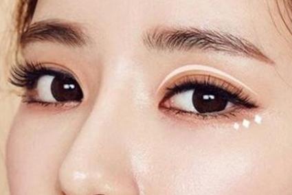 长沙割双眼皮多少钱 亚韩整形段春巍严格控制宽窄与弧度