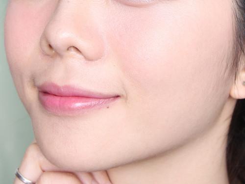 安阳婷淇医疗美容玻尿酸除皱术,为您抚平褶皱皮肤