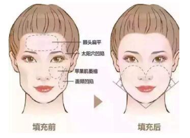 面部填充的三大真相 上海美莱王刚艺术填充塑形持久抗衰
