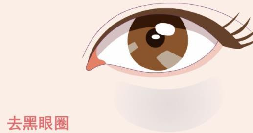 昆明哪里祛黑眼圈好 昆明超然激光祛黑眼圈有何优势