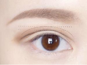 西安睛彩整形医院做双眼皮埋线疼不疼 无需开刀和拆线