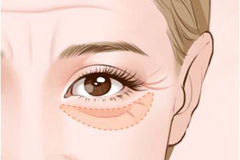 祛眼袋的方法有哪些 太原医疗美容整形医院祛眼袋费用多少
