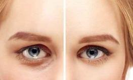 手术祛眼袋会留疤吗 美眼大师北京彤美王征帮您告别憔悴