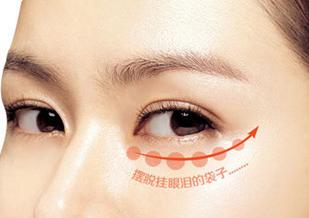 吸脂祛眼袋安全吗 新疆华美国际玛丽亚赶走憔悴 眼周减龄