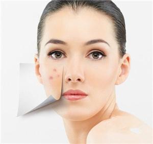 脸上痘痘怎么治疗 上海爱丽姿激光祛痘效果好吗