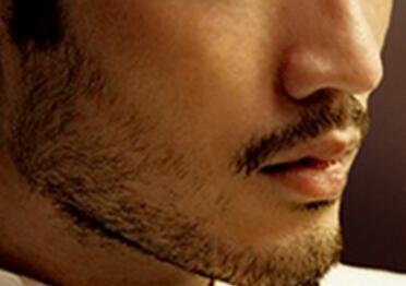 临沂瑞丽植发整形医院胡须种植效果好 原理是什么