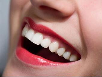 北京五月花口腔诊所牙齿矫正价格多少钱 矫正牙齿歪斜