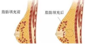 哪些人不适合自体脂肪丰胸 苏州康美李旭东手术一次见效吗