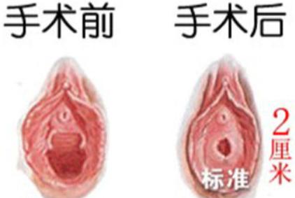 处女膜修复前要做什么检查 成都美莱黄小林处女膜修复价格