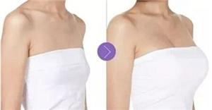 隆胸的方法有哪些 武汉亚韩赵贵庆自体脂肪丰胸效果好吗
