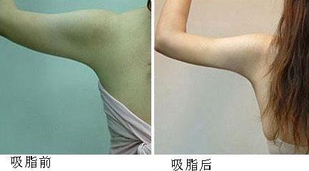 宁波美莱整形医院手臂吸脂多少钱 刘昆鹏术后线条自然