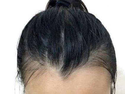 专业植发医生推荐 西安雍禾做美人尖种植效果及价格
