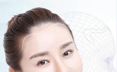 云南华美美莱俞满昌植发好不好 种植发际线多少钱