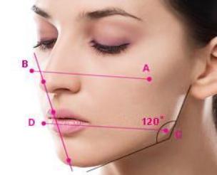 昆明星耀整形医院郑延清切除肥大下颌角 塑造标准轮廓