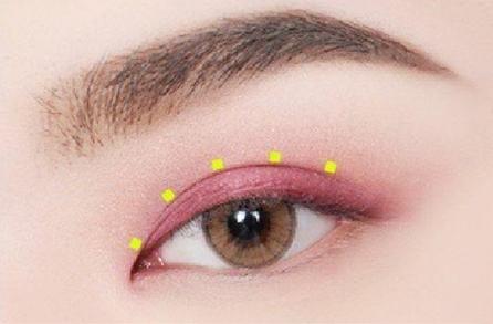 广州韩妃于洪瑞割双眼皮怎么样 做埋线双眼皮多少钱