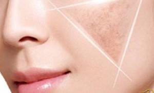 上海浦东医院皮肤科激光祛斑价格多少 多激光分层祛斑美白