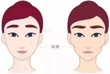 什么人适合做面部填充 北京东方百合整形王世勇恢复年轻态
