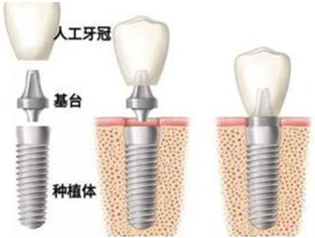种植牙可能会造成哪些副作用 贵阳华美莫小红擅长口腔治疗