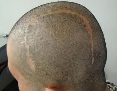 厦门疤痕植发多少钱 雍禾植发医院疤痕植发效果怎么样