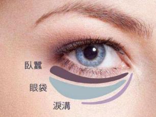治疗眼袋的方法 郑州华领整形张永涛做激光祛眼袋口碑