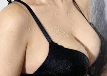 成都华美紫馨谢凯英做乳头内陷矫正 凹陷的乳房挺越来