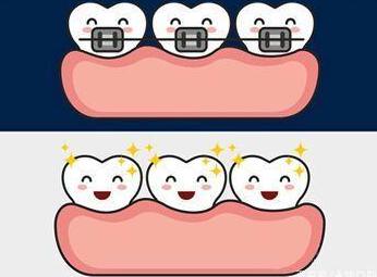 牙齿矫正的适宜年龄 贵阳华美口腔医院艾华矫治正当时