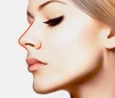 长沙爱思特整形吴蒙鼻再造的效果 力求向真鼻靠拢