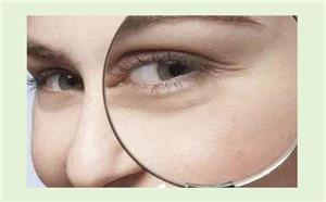 眼角鱼尾纹去除方法哪种好 昆明西山达美10分钟抚平皱纹