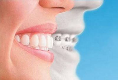 武汉做牙齿矫正多少钱 牙达人口腔医院陈思专业牙齿正畸