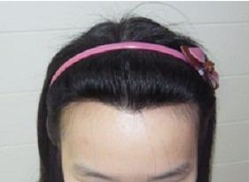 广州荔湾人民医院整形科齐云香植发价钱 美人尖种植优势