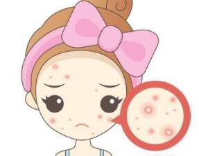 红蓝光祛痘真的管用吗 西安香港华一彻底扫除肌肤痘疤坑印