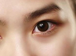 深圳阳光整形医院李鹏开内眼角 个性设计 眼睛自然放大