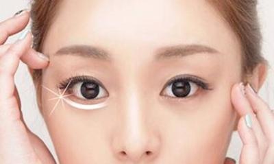 怎么去眼袋 广州紫馨整形谷琪医生擅长去眼袋手术