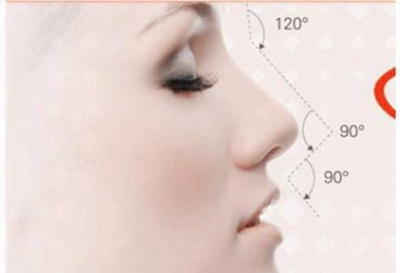 太原欧美莲于永红隆鼻怎么样 假体隆鼻需要多少钱