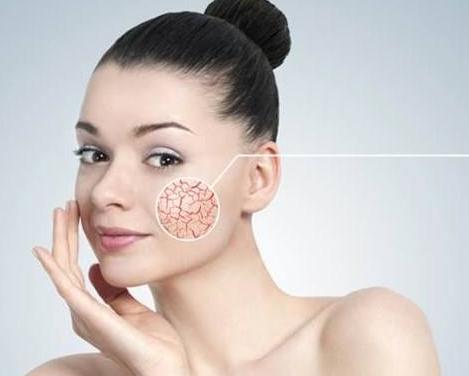 宜昌做激光去红血丝多少钱 激光治疗会伤害皮肤吗