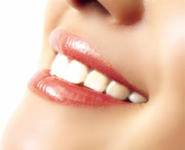 武汉优益佳口腔成人牙齿矫正有什么特点 矫正牙齿歪斜