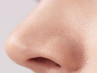 鼻翼缩小手术原则是什么 佛山君美整形鼻翼缩小优势