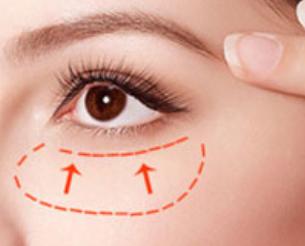 非手术祛眼袋的方法有哪些 青岛华诺整形医院10分钟去眼袋