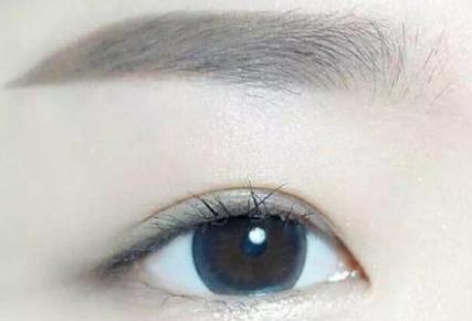 切眉的适应症 上海艺星整形许炎龙美眉除皱 一举两得