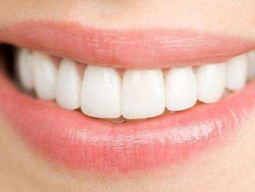 冷光美白牙齿的优势 青岛拜博口腔医院价格贵吗