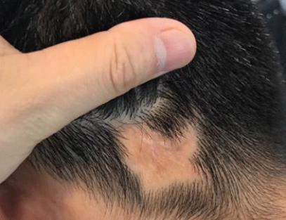 成都疤痕植发大概多少钱 雍禾植发韩岩疤痕植发成功率高吗
