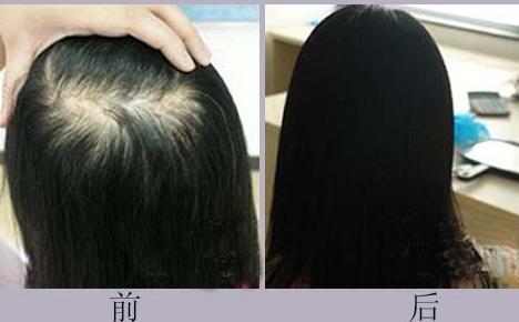 北京新生发植发女性加密植发价格表 高国强术后自然唯美