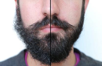 武汉华美植发胡须种植多少钱 韩忠熙标准定制型男标识