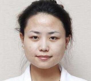 黑脸娃娃是什么 上海俪人整形医院范鑫帮你重拾美丽肌肤