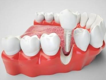 种植牙过程痛吗 汉中小白象口腔地址在哪