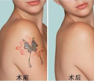 长治洗纹身哪家医院好 悦美整形医院激光洗纹身效果对比图
