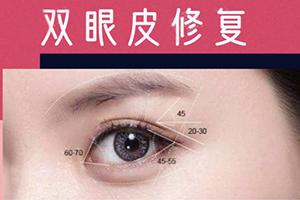 国内顶尖双眼皮修复专家排行 武汉希思特杨权明360°王牌术